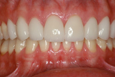 Wadia Dental Group Escondido - Bonding and Veneer - After