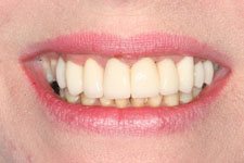 Wadia Dental Group - Female Smile Makeover -After