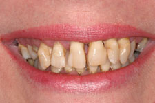 Wadia Dental Group - Female Smile Makeover -Before