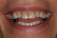 Wadia Dental Group - Female Veneer - Before