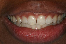 Wadia Dental Group - Invisalign - After