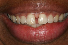 Wadia Dental Group - Invisalign - Before