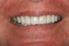 Wadia Dental Group - Male Smile Makeover - After