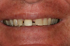 Wadia Dental Group - Male Smile Makeover - Before