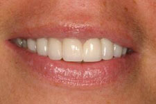 Wadia Dental Group - Male Smile Makeover 2 - After