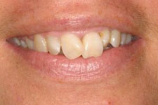 Wadia Dental Group - Male Smile Makeover 2 - Before