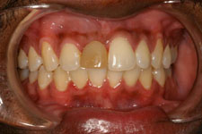 Wadia Dental Group - Single Implant - Before