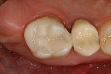Wadia Dental Group - Tooth Colored Filling - After