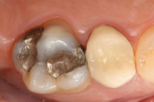 Wadia Dental Group - Tooth Colored Filling - Before