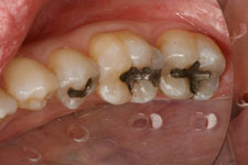 Wadia Dental Group - Tooth Colored Filling 2 - Before