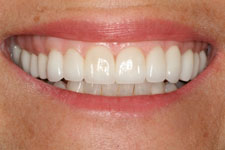 Wadia Dental Group - Veneers and Crowns - After