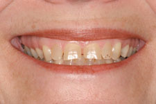 Wadia Dental Group - Veneers and Crowns - Before