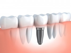 Dental Implants - Wadia Escondido, San Diego